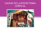 15 causas de la disectomia cervical