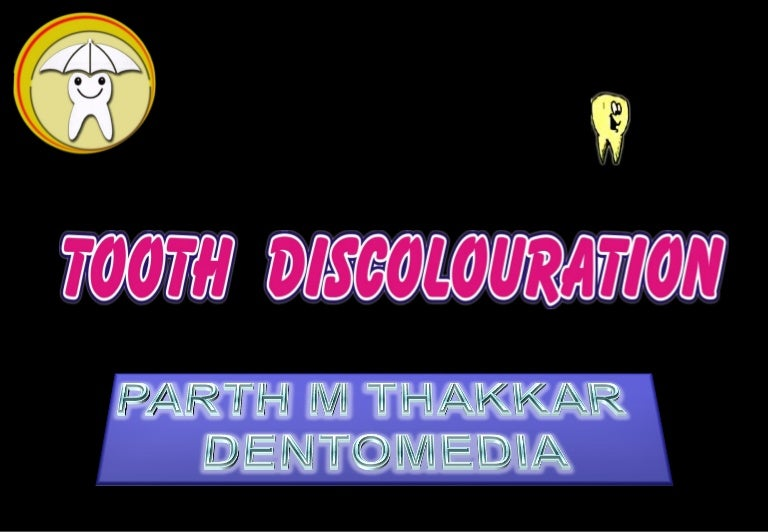 32337404-tooth-discolour-at-ion-pedo-120312125439-phpapp02-thumbnail-4 ...