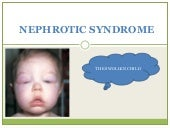 8. Nephrotic Syndrome & AcuteGlomer...
