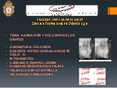 Alineacion y oclusion dental