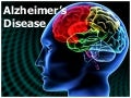 Alzheimer's disease: Management