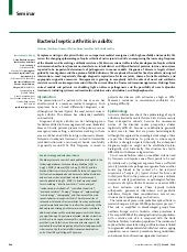 Bacterial septic arthritis adult