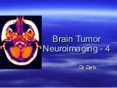 Brain tumor neuroimaging   4 17th m...
