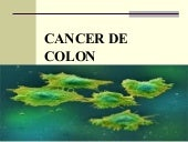 Cancer de-colon