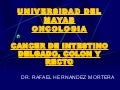 Cancer de Intestino delgado, colon y recto