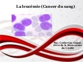Cancer de la_leucemie (1)