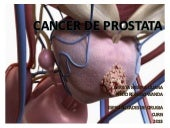 Cancer de prostata(smr)