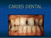 Caries dental consultorio odontologico
