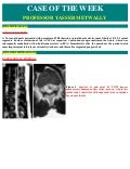 Case record...Spinal dural arteriovenous fistula with congestive myelopathy