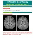 Case record...Cerebral palsy