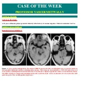 Case record...Multiple meningiomas