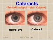 Cataract Dv