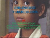 Childhood Tuberculosis