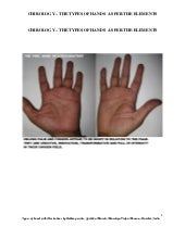 Chirology the types of hands