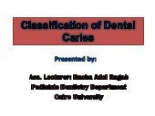 Classification of dental caries ras...