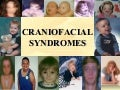 Craniofacial syndromes /certified fixed orthodontic courses by Indian dental academy