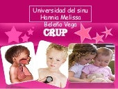 Crup en pediatria