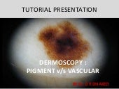 Dermoscopy pigment vs vascular