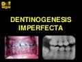 Dentinogénesis Imperfecta