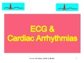 Ecg & arrhythmias