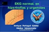 Ekg3 Normal, Hipertrofias Y Urgencias