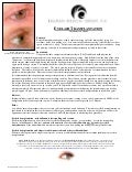 Eyelash Transplant - Information for Patients