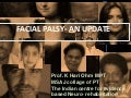 Facial palsy- an update