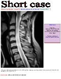 Short case...Spinal multiple sclerosis