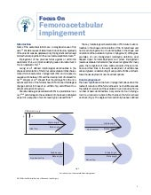 Impingement Femoroacetabular