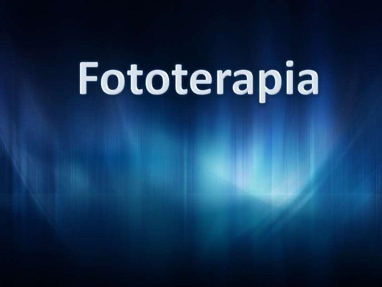 http://cdn.slidesharecdn.com/ss_thumbnails/fototerapia-111011152656-phpapp02-thumbnail-4.jpg?cb=1318364850