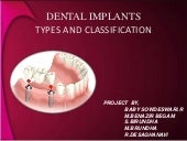 types and classification of dental ...
