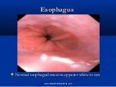 Esophagus   /certified fixed orthod...