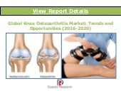 Global Knee Osteoarthritis Market: Trends and Opportunities (2015-2020) - New Report by Daedal Research