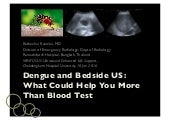 Dengue and Bedside Ultrasound