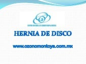 Hernia de disco power point