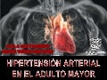 Hipertension arterial del adulto mayor