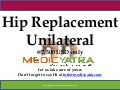 Hip Replacement Unilateral surgery & Treatment || MedicYatra