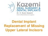 Dental Implants for replacement of Upper Lateral Incisors