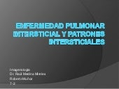 Intersticio pulmonar