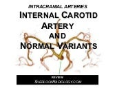 Internal Carotid Artery and Normal ...