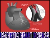 Ischemic Heart Disease.ppt