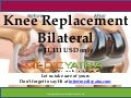 Knee replacement Bilateral surgery & Traetment || MedicYatra