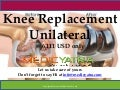 Knee replacement Unilateral surgery & Traetment || MedicYatra