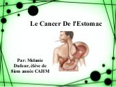 Le cancer de_l_estomac