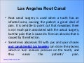 Los Angeles Root Canal 3-5