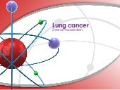 Lung cancer: a 2014 update with inf...
