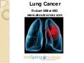 Lung Cancer Video1