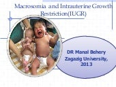 Macrosomia and iugr with case study...