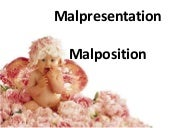 Malpresentation malposition by ILI