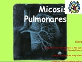 Micosis pulmonares.Dominguez Perez